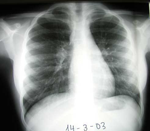 caso-2008-04